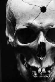 bullet entry wound skull