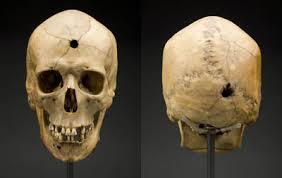 bullet entry wounds skull